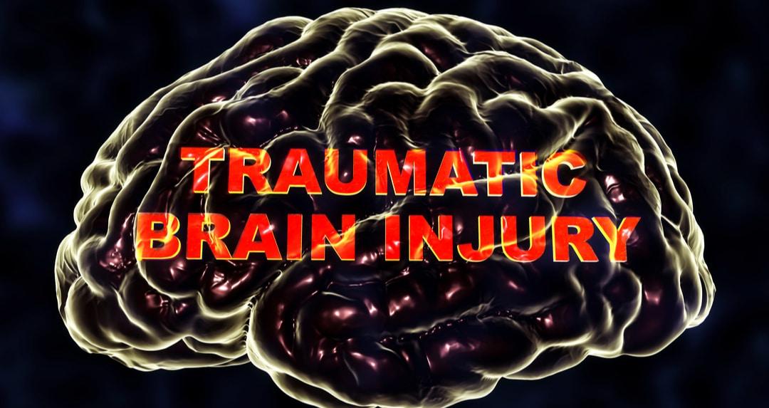 TBI brain injury