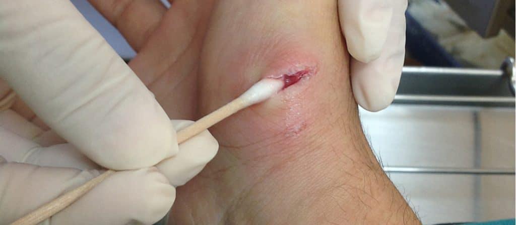 a dog bite