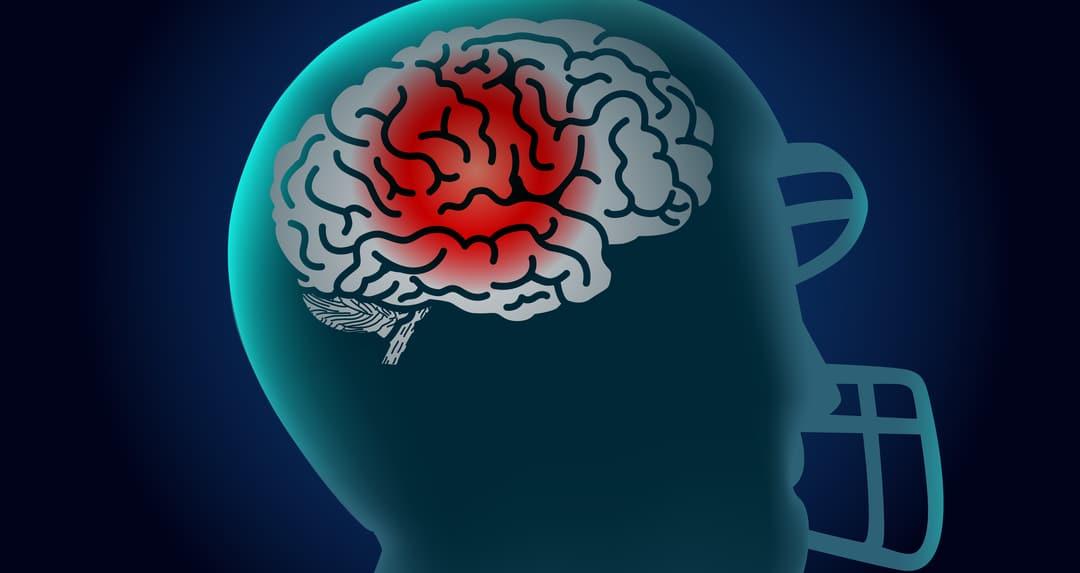 effects of brain injury