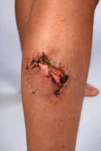 Illinois Dog Bite Injury